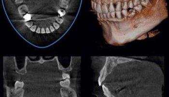 Dental Volume Tomography