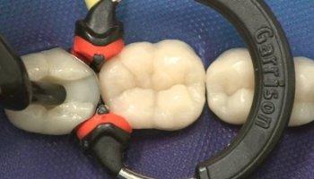 Composite pada gigi posterior