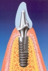 Dental Implant, the best alternative to replace your missing tooth/teeth...